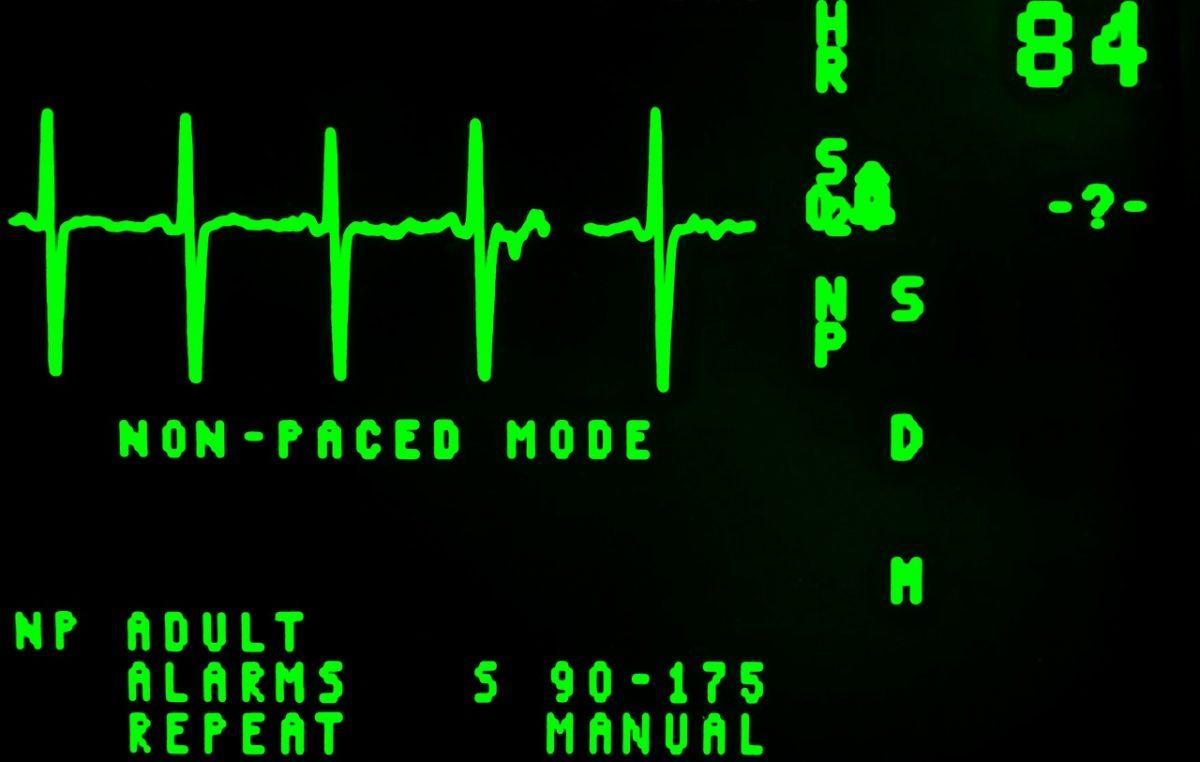 Radionica u sklopu projekta RiStart naučit će vas uporabi defibrilatora i spašavanju života