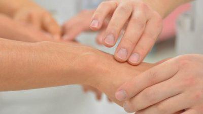 Besplatni dermatološki pregled madeža u Kastvu